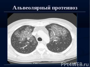 Альвеолярный протеиноз