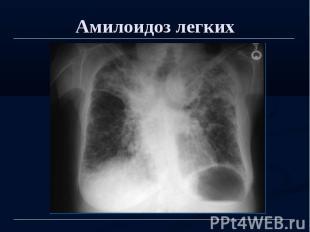 Амилоидоз легких