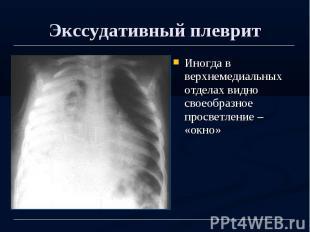 Экссудативный плеврит Иногда в верхнемедиальных отделах видно своеобразное просв