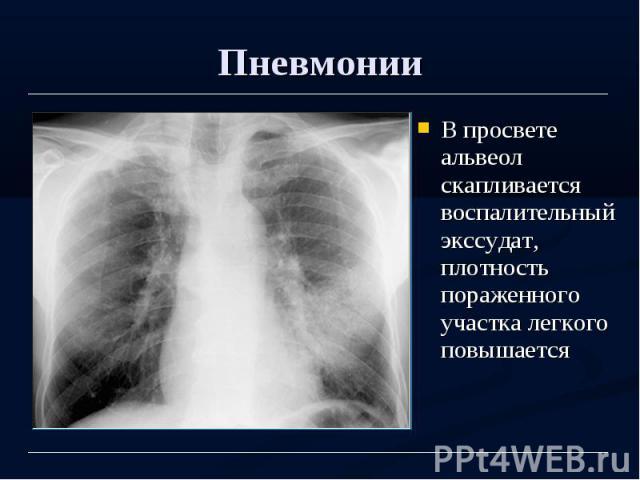 Пневмонии В просвете альвеол скапливается воспалительный экссудат, плотность пораженного участка легкого повышается