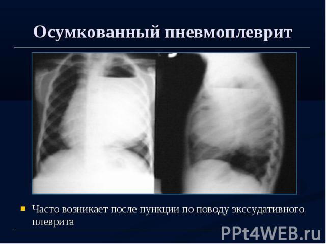 Осумкованный пневмоплеврит Часто возникает после пункции по поводу экссудативного плеврита