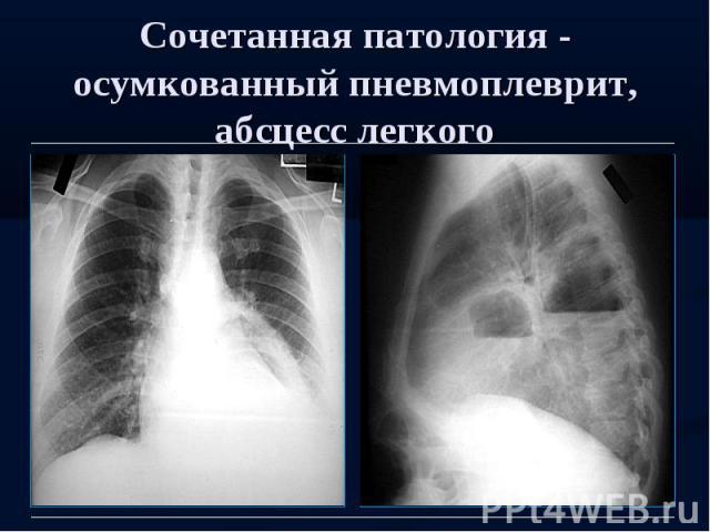 Сочетанная патология - осумкованный пневмоплеврит, абсцесс легкого
