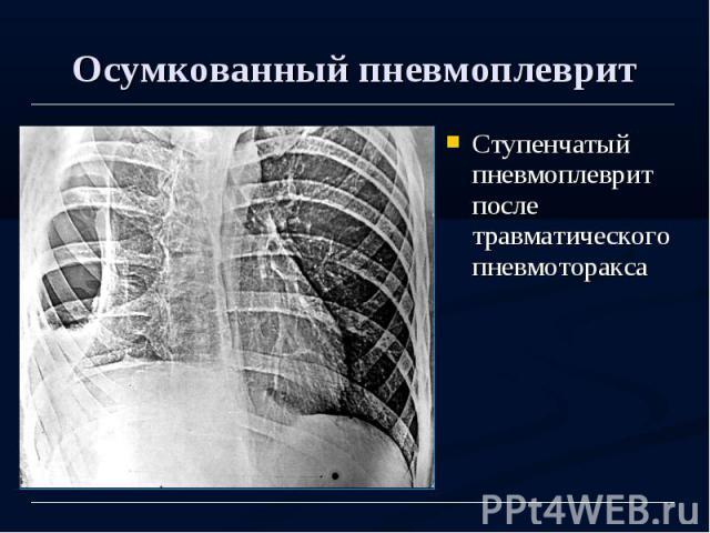 Осумкованный пневмоплеврит Ступенчатый пневмоплеврит после травматического пневмоторакса