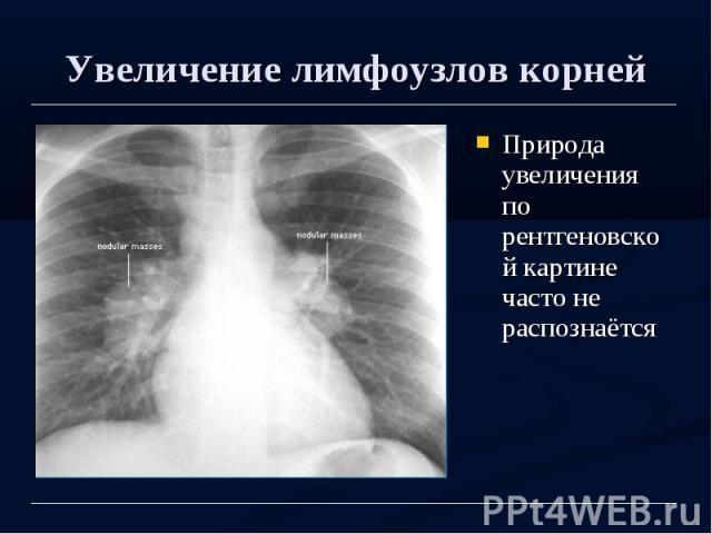 Увеличение лимфоузлов корней Природа увеличения по рентгеновской картине часто не распознаётся