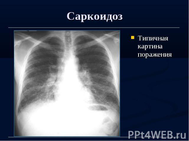 Саркоидоз Типичная картина поражения