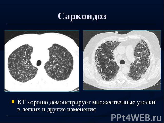 Саркоидоз КТ хорошо демонстрирует множественные узелки в легких и другие изменения