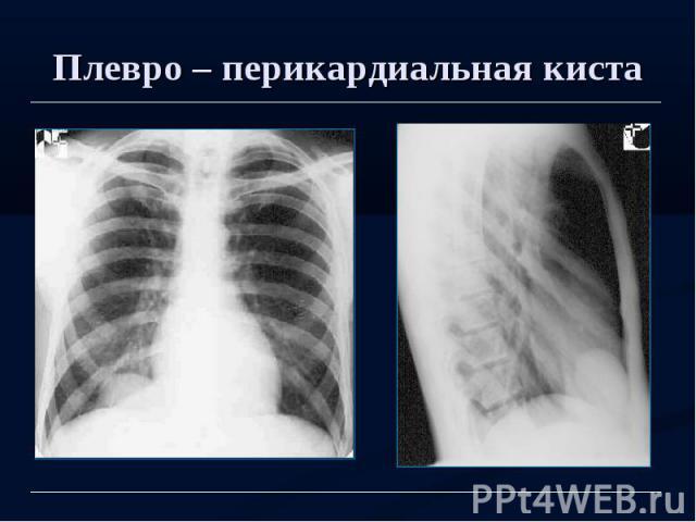 Плевро – перикардиальная киста
