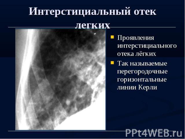 Интерстициальный отек легких Проявления интерстициального отека лёгких Так называемые перегородочные горизонтальные линии Керли