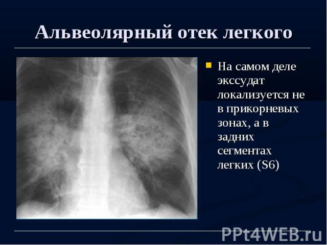 Альвеолярный отек легкого На самом деле экссудат локализуется не в прикорневых зонах, а в задних сегментах легких (S6)