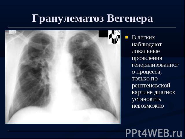 Гранулематоз Вегенера В легких наблюдают локальные проявления генерализованного процесса, только по рентгеновской картине диагноз установить невозможно