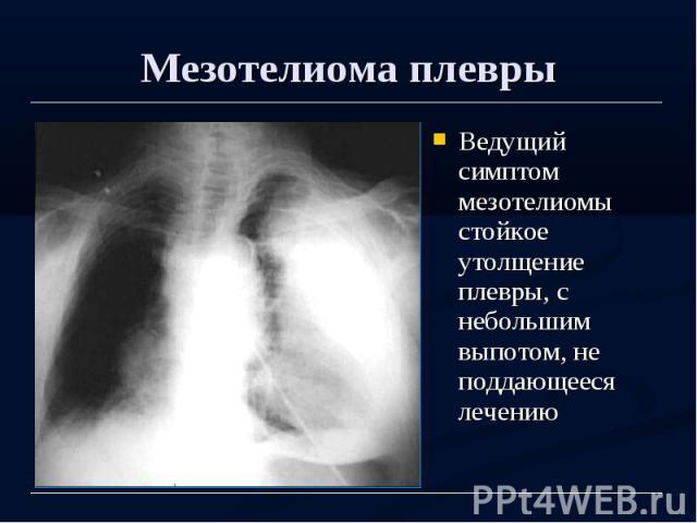 Мезотелиома плевры Ведущий симптом мезотелиомы стойкое утолщение плевры, с небольшим выпотом, не поддающееся лечению