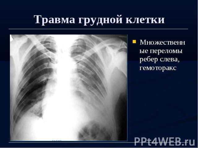 Травма грудной клетки Множественные переломы ребер слева, гемоторакс