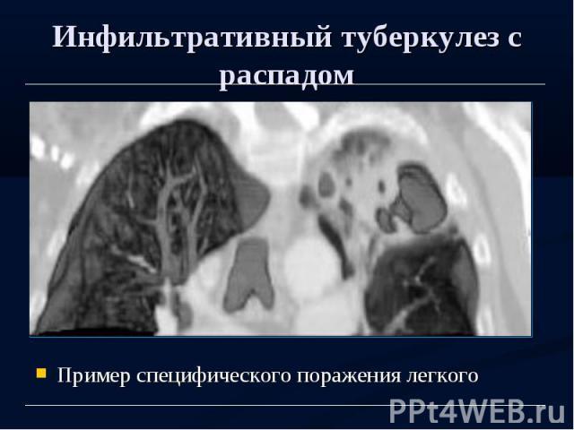 Инфильтративный туберкулез с распадом Пример специфического поражения легкого
