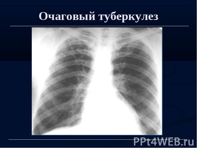 Очаговый туберкулез