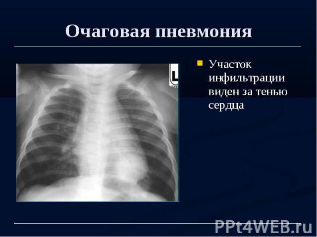 Очаговая пневмония Участок инфильтрации виден за тенью сердца