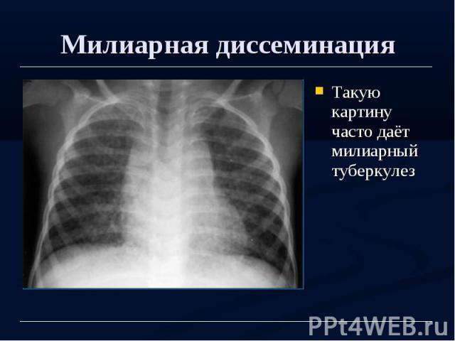 Милиарная диссеминация Такую картину часто даёт милиарный туберкулез