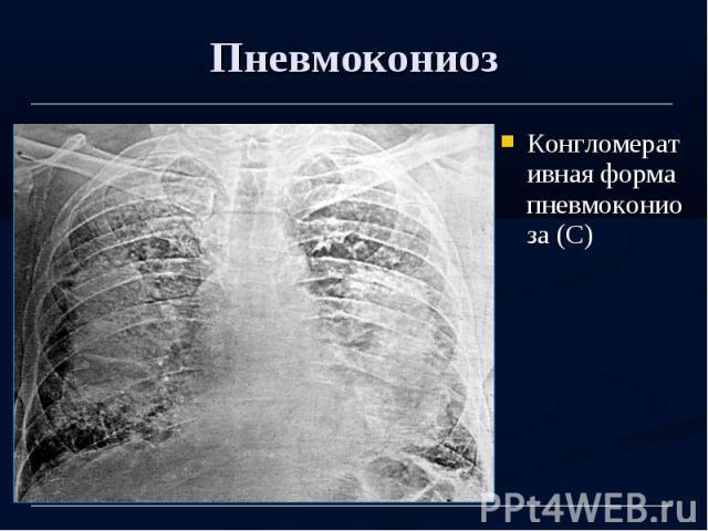 Пневмокониоз Конгломеративная форма пневмокониоза (С)