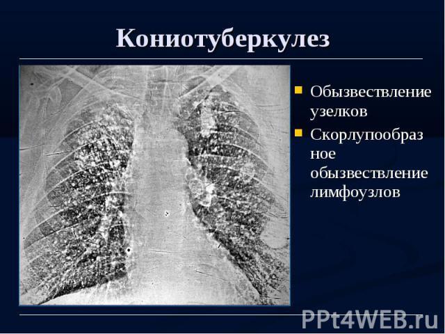 Кониотуберкулез Обызвествление узелков Скорлупообразное обызвествление лимфоузлов