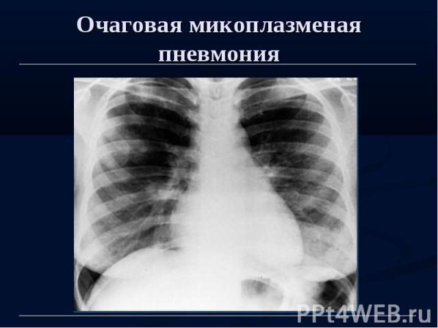 Очаговая микоплазменая пневмония