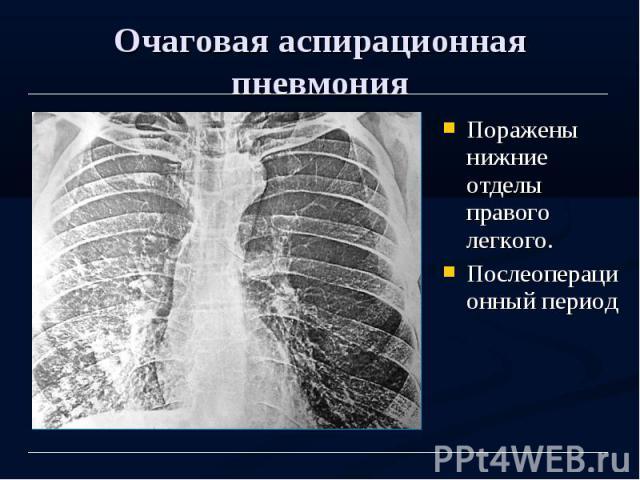 Очаговая аспирационная пневмония Поражены нижние отделы правого легкого. Послеоперационный период