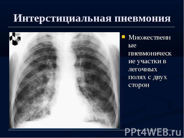 Интерстициальная пневмония Множественные пневмонические участки в легочных полях с двух сторон
