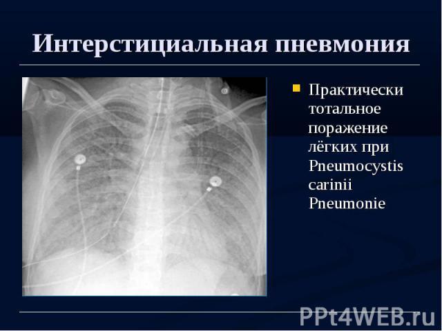 Интерстициальная пневмония Практически тотальное поражение лёгких при Pneumocystis carinii Pneumonie