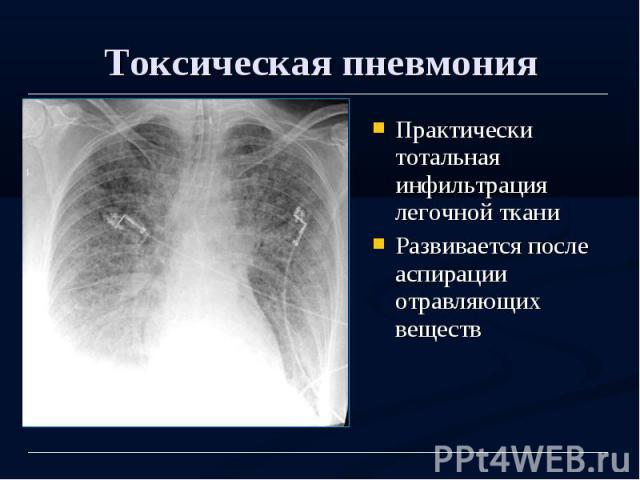 Токсическая пневмония Практически тотальная инфильтрация легочной ткани Развивается после аспирации отравляющих веществ