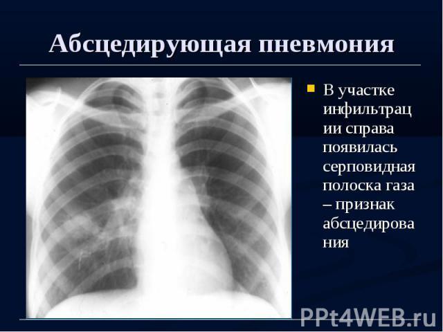Абсцедирующая пневмония В участке инфильтрации справа появилась серповидная полоска газа – признак абсцедирования