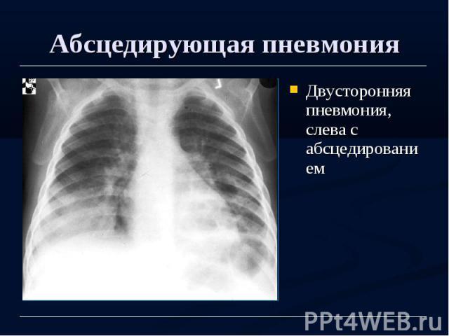 Абсцедирующая пневмония Двусторонняя пневмония, слева с абсцедированием