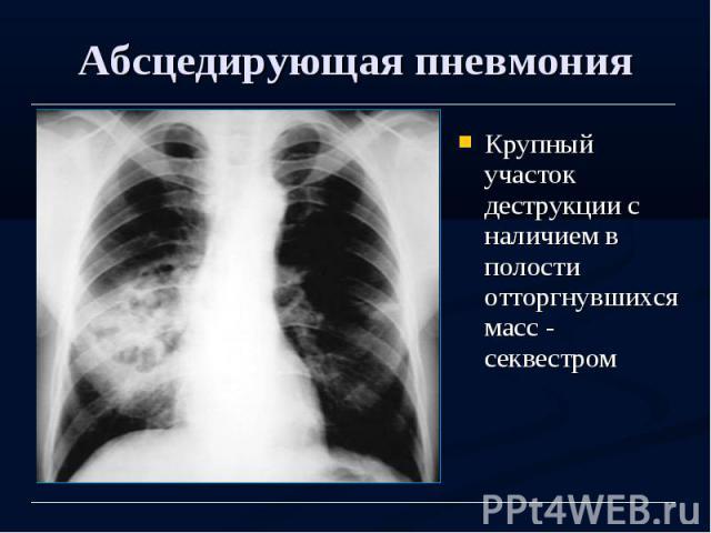 Абсцедирующая пневмония Крупный участок деструкции с наличием в полости отторгнувшихся масс - секвестром