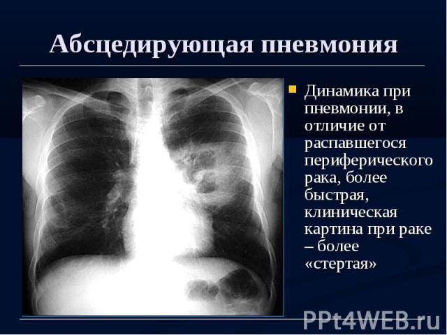 Абсцедирующая пневмония Динамика при пневмонии, в отличие от распавшегося периферического рака, более быстрая, клиническая картина при раке – более «стертая»