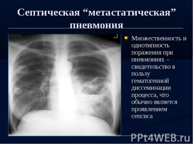 """Септическая """"метастатическая"""" пневмония Множественность и однотипность поражения при пневмониях – свидетельство в пользу гематогенной диссеминации процесса, что обычно является проявлением сепсиса"""
