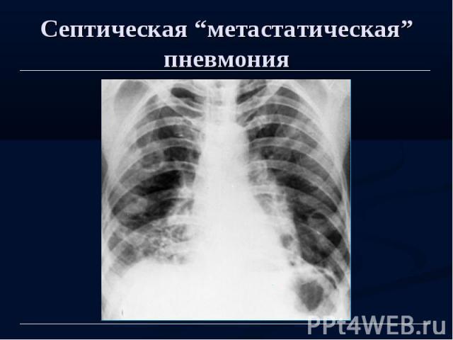 """Септическая """"метастатическая"""" пневмония"""