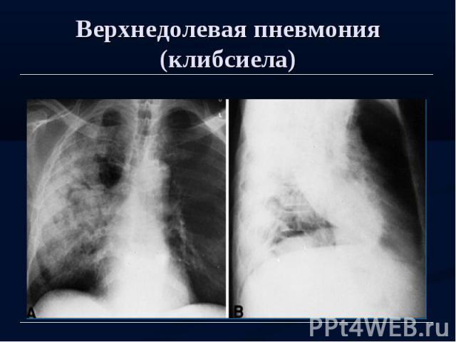 Верхнедолевая пневмония (клибсиела)