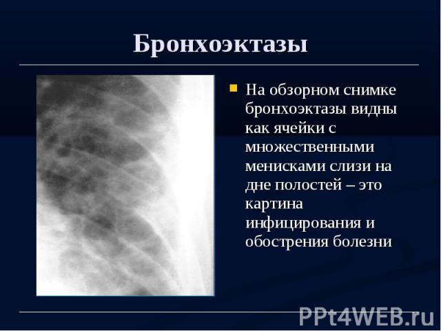 Бронхоэктазы На обзорном снимке бронхоэктазы видны как ячейки с множественными менисками слизи на дне полостей – это картина инфицирования и обострения болезни