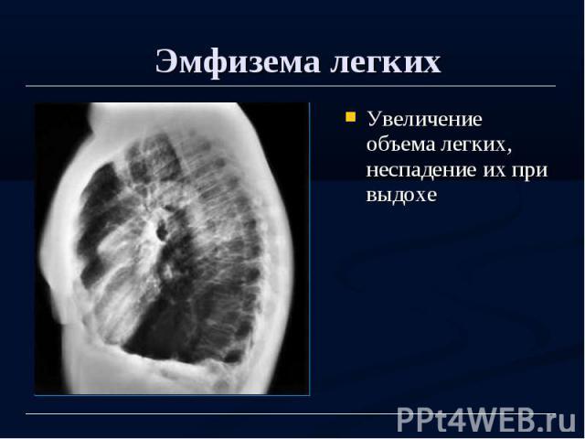 Эмфизема легких Увеличение объема легких, неспадение их при выдохе