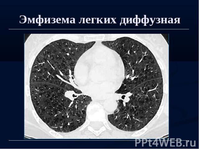 Эмфизема легких диффузная