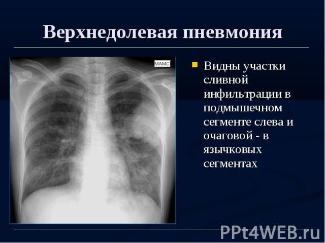 Верхнедолевая пневмония Видны участки сливной инфильтрации в подмышечном сегменте слева и очаговой - в язычковых сегментах