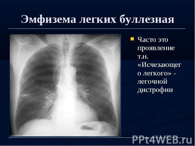 Эмфизема легких буллезная Часто это проявление т.н. «Исчезающего легкого» - легочной дистрофии