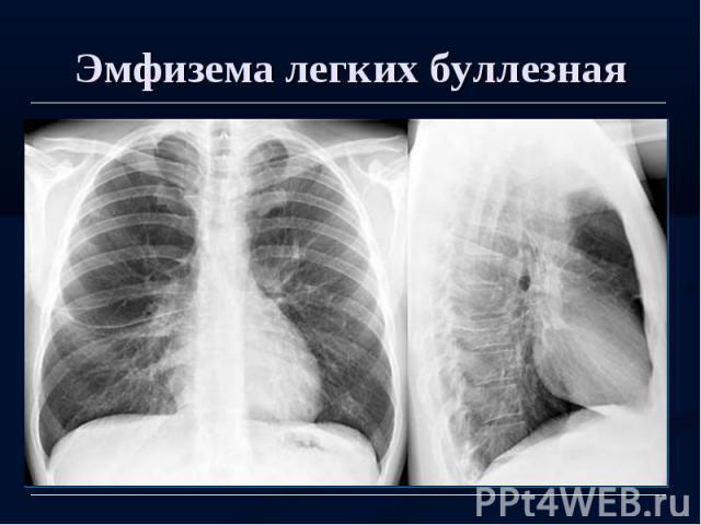 Эмфизема легких буллезная