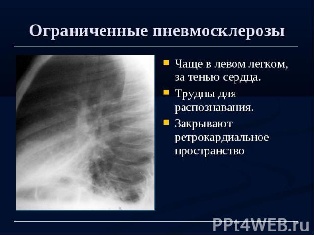 Ограниченные пневмосклерозы Чаще в левом легком, за тенью сердца. Трудны для распознавания. Закрывают ретрокардиальное пространство
