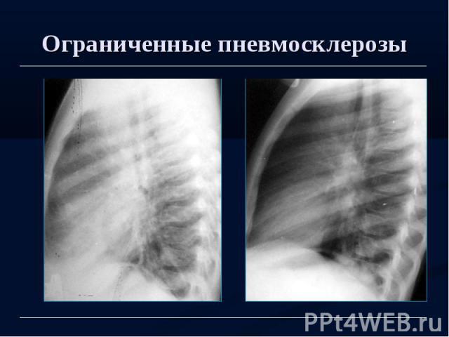 Ограниченные пневмосклерозы