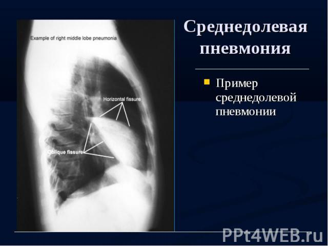 Среднедолевая пневмония Пример среднедолевой пневмонии