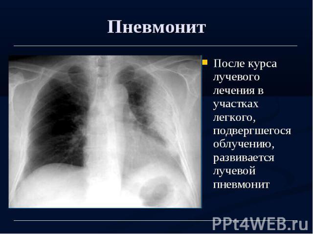 Пневмонит После курса лучевого лечения в участках легкого, подвергшегося облучению, развивается лучевой пневмонит
