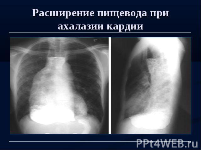 Расширение пищевода при ахалазии кардии