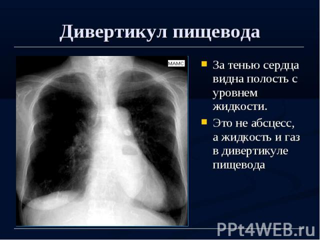 Дивертикул пищевода За тенью сердца видна полость с уровнем жидкости. Это не абсцесс, а жидкость и газ в дивертикуле пищевода