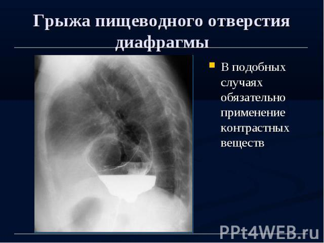 Грыжа пищеводного отверстия диафрагмы В подобных случаях обязательно применение контрастных веществ