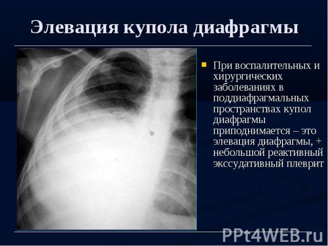 Элевация купола диафрагмы При воспалительных и хирургических заболеваниях в поддиафрагмальных пространствах купол диафрагмы приподнимается – это элевация диафрагмы, + небольшой реактивный экссудативный плеврит