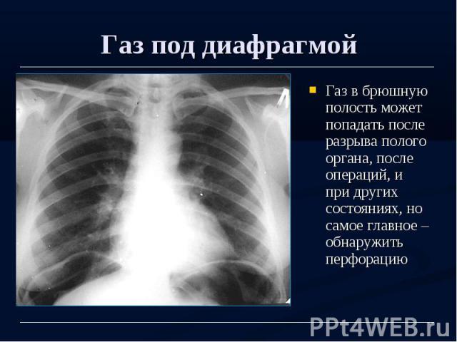 Газ под диафрагмой Газ в брюшную полость может попадать после разрыва полого органа, после операций, и при других состояниях, но самое главное – обнаружить перфорацию