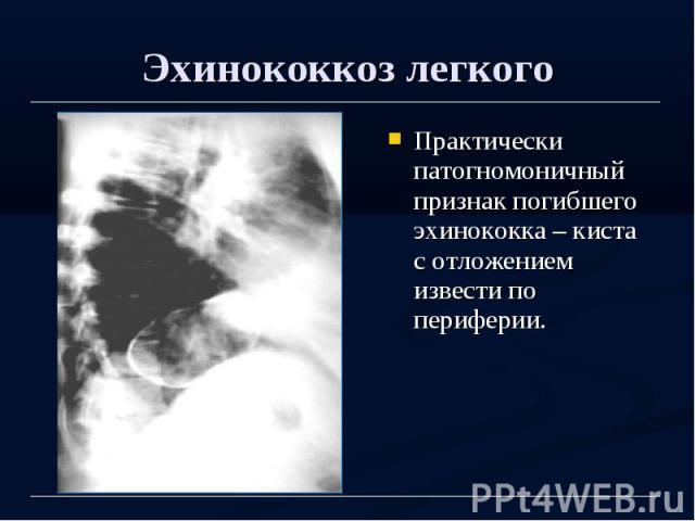 Эхинококкоз легкого Практически патогномоничный признак погибшего эхинококка – киста с отложением извести по периферии.